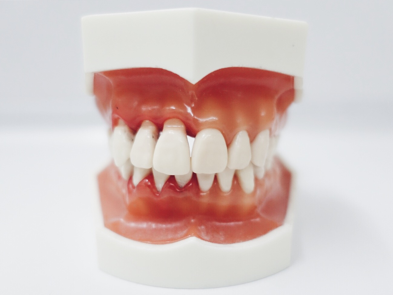 restauraties, tandarts coene, tandarts den haag, one-day-dentistry